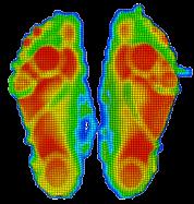 Fußdruckanalyse Scan